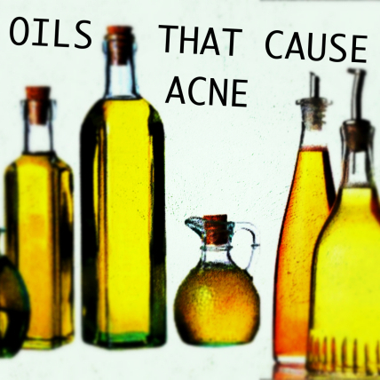 oils causing acne_square